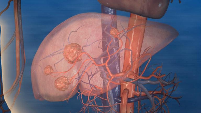 Normal Liver Tissue