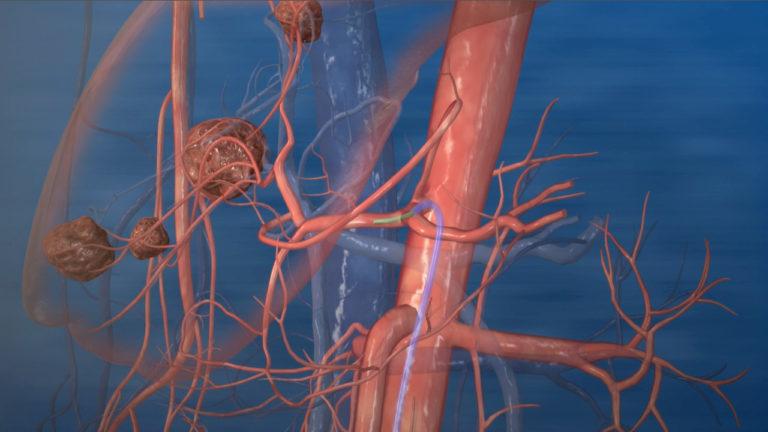 Micro-Catheter enters artery